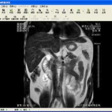 供应dicom工作站 x光机 CR DR CT MRI DSA工作站批发